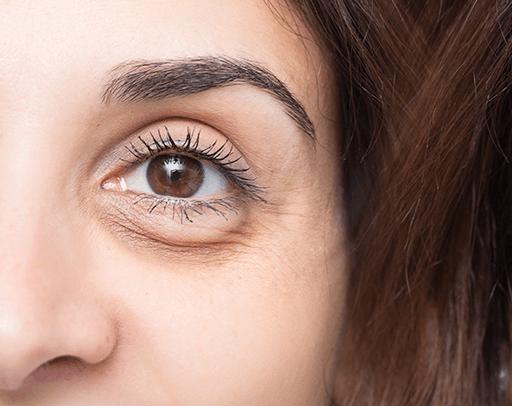 Eyebags-Dark-Eye-Circle-1
